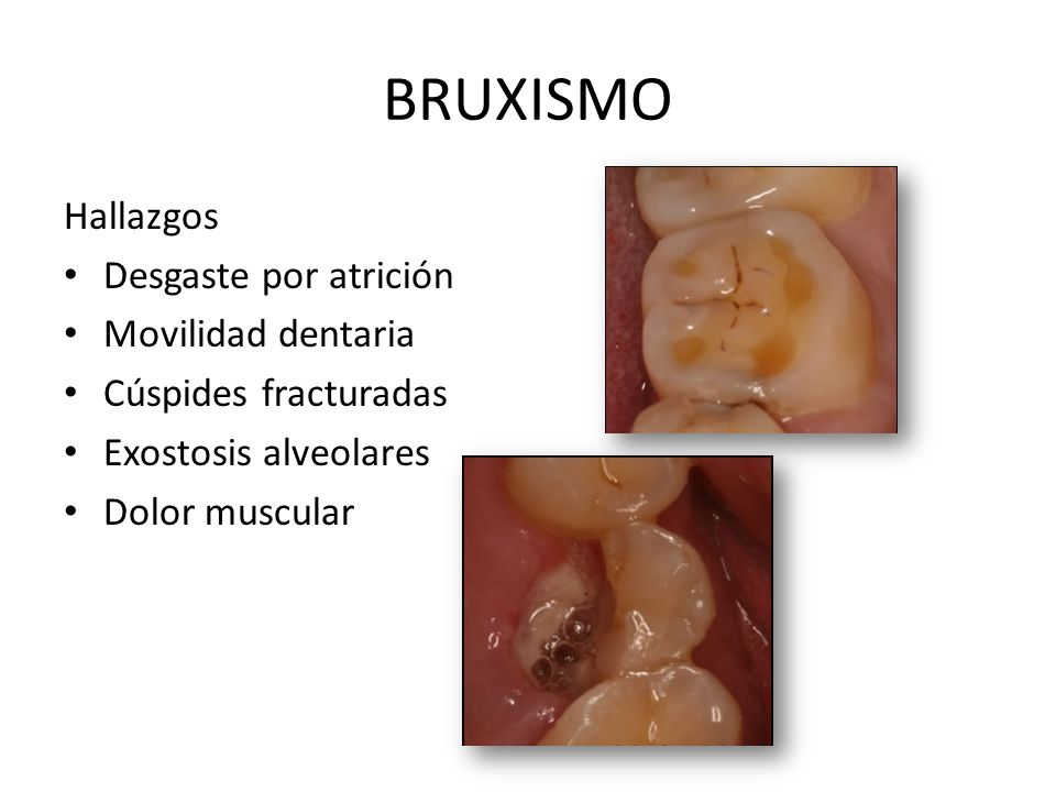 BRUXISMO Hallazgos Desgaste por atrición Movilidad dentaria Cúspides fracturadas Exostosis alveolares Dolor muscular