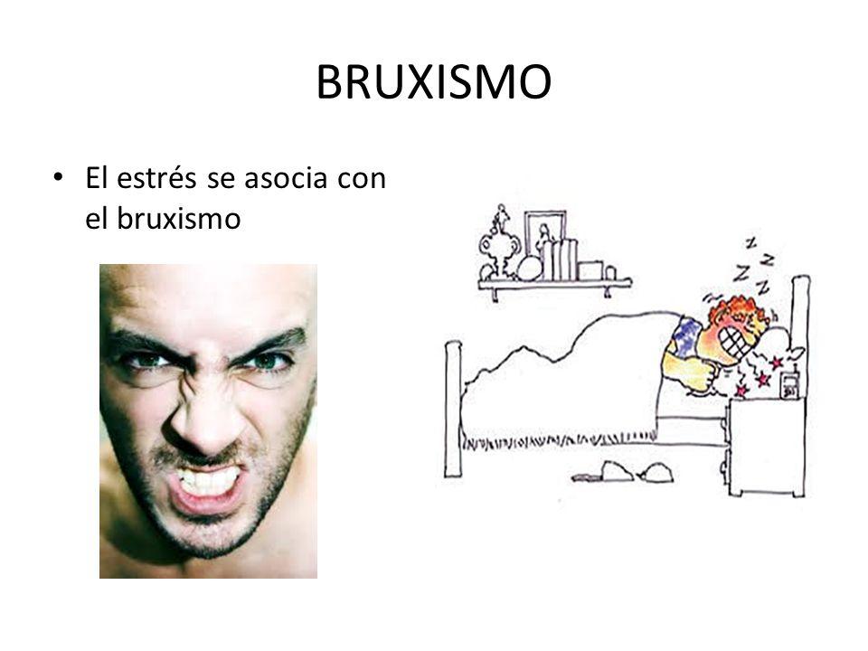 BRUXISMO El estrés se asocia con el bruxismo
