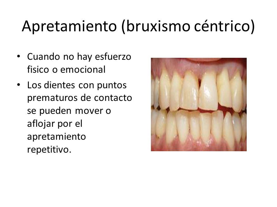 Apretamiento (bruxismo céntrico) Cuando no hay esfuerzo fisico o emocional Los dientes con puntos prematuros de contacto se pueden mover o aflojar por el apretamiento repetitivo.