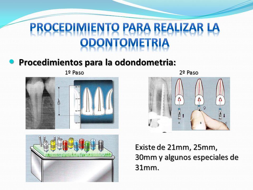 Procedimientos para la odondometria: Procedimientos para la odondometria: 2º Paso 1º Paso Existe de 21mm, 25mm, 30mm y algunos especiales de 31mm.