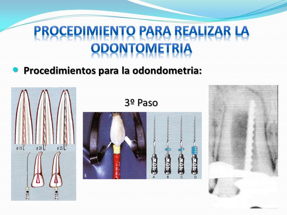 Procedimientos para la odondometria: Procedimientos para la odondometria: 3º Paso