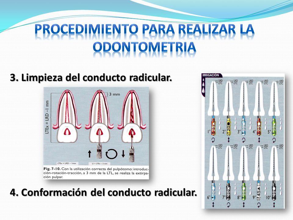 3. Limpieza del conducto radicular. 4. Conformación del conducto radicular.