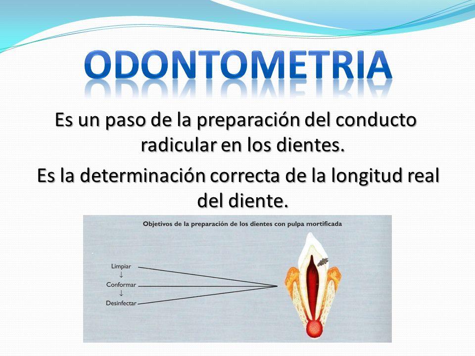 Es un paso de la preparación del conducto radicular en los dientes. Es la determinación correcta de la longitud real del diente. Es la determinación c