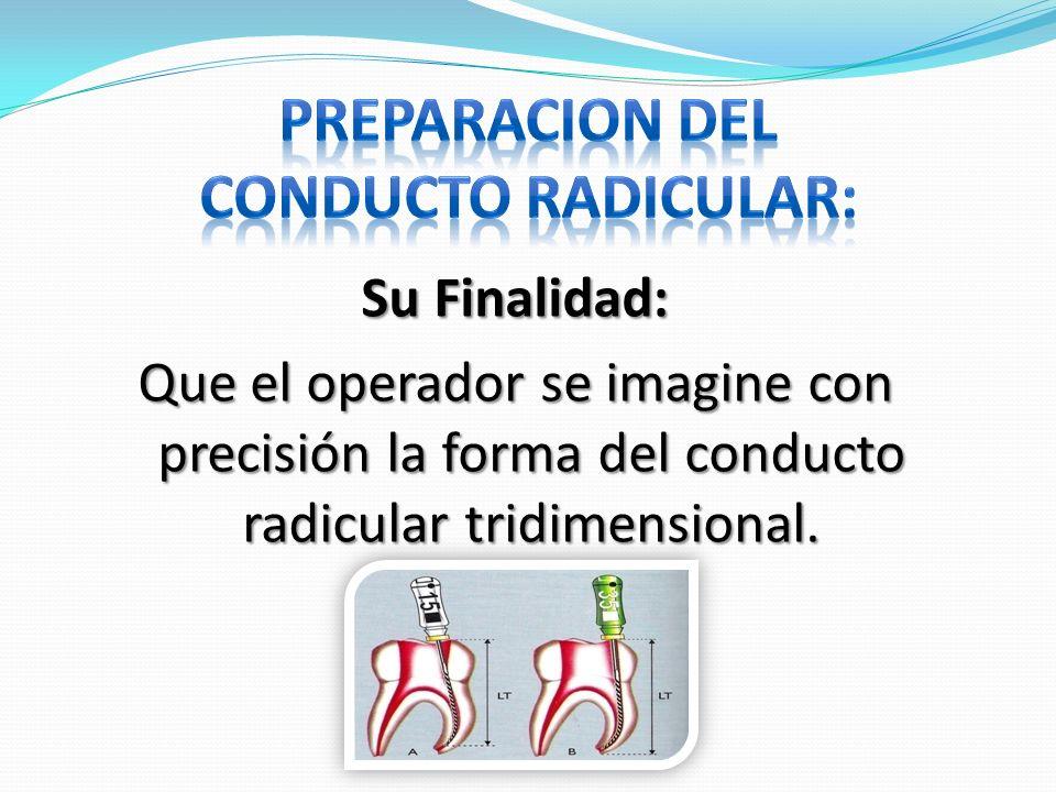 Su Finalidad: Que el operador se imagine con precisión la forma del conducto radicular tridimensional.