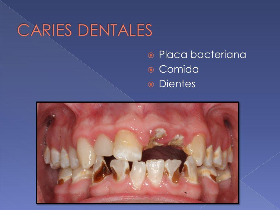 Placa bacteriana Comida Dientes
