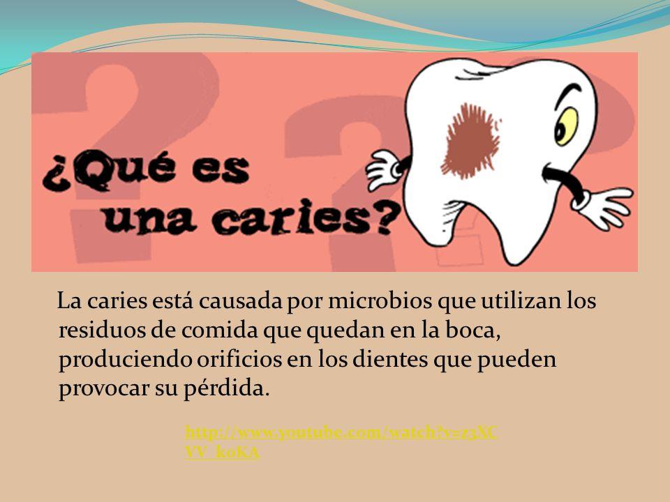 La caries está causada por microbios que utilizan los residuos de comida que quedan en la boca, produciendo orificios en los dientes que pueden provoc