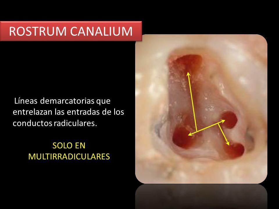 ROSTRUM CANALIUM Líneas demarcatorias que entrelazan las entradas de los conductos radiculares. SOLO EN MULTIRRADICULARES