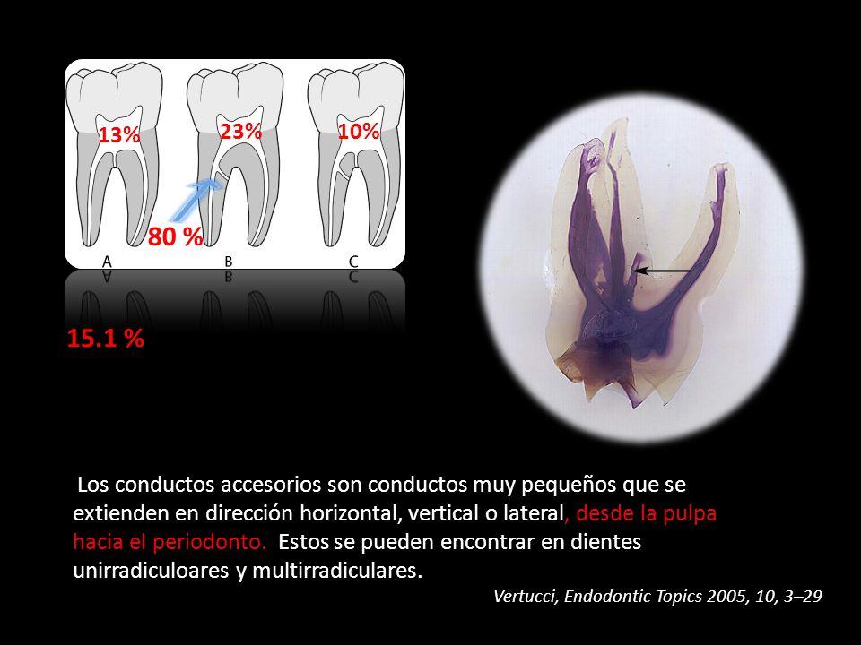 Los conductos accesorios son conductos muy pequeños que se extienden en dirección horizontal, vertical o lateral, desde la pulpa hacia el periodonto.