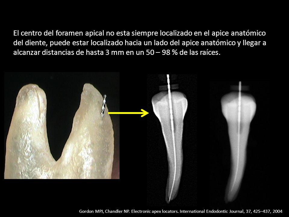 El centro del foramen apical no esta siempre localizado en el apice anatómico del diente, puede estar localizado hacia un lado del apice anatómico y l