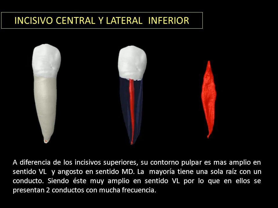 INCISIVO CENTRAL Y LATERAL INFERIOR A diferencia de los incisivos superiores, su contorno pulpar es mas amplio en sentido VL y angosto en sentido MD.