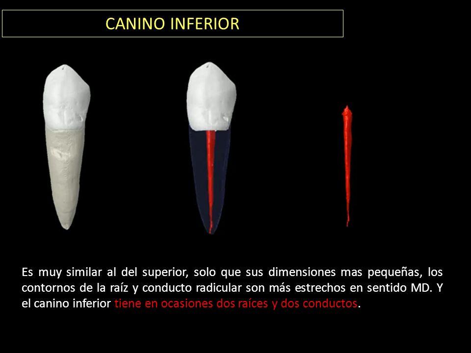 CANINO INFERIOR Es muy similar al del superior, solo que sus dimensiones mas pequeñas, los contornos de la raíz y conducto radicular son más estrechos