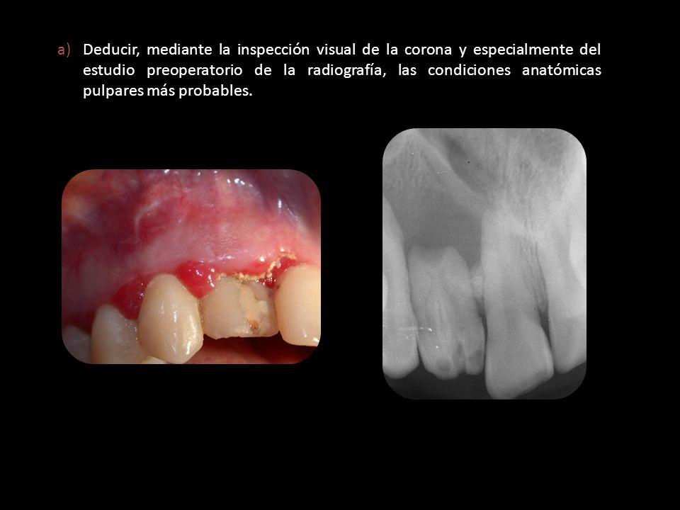 a)Deducir, mediante la inspección visual de la corona y especialmente del estudio preoperatorio de la radiografía, las condiciones anatómicas pulpares