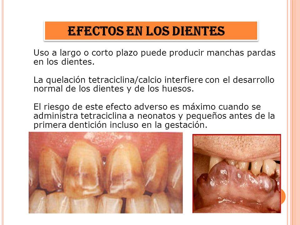 Efectos en los dientes Uso a largo o corto plazo puede producir manchas pardas en los dientes. La quelación tetraciclina/calcio interfiere con el desa