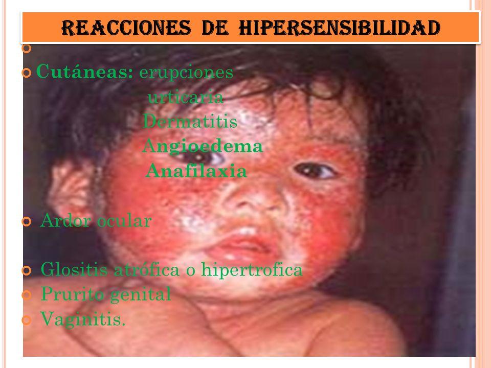 Cutáneas: erupciones urticaria Dermatitis A ngioedema Anafilaxia Ardor ocular Glositis atrófica o hipertrofica Prurito genital Vaginitis. Reacciones d