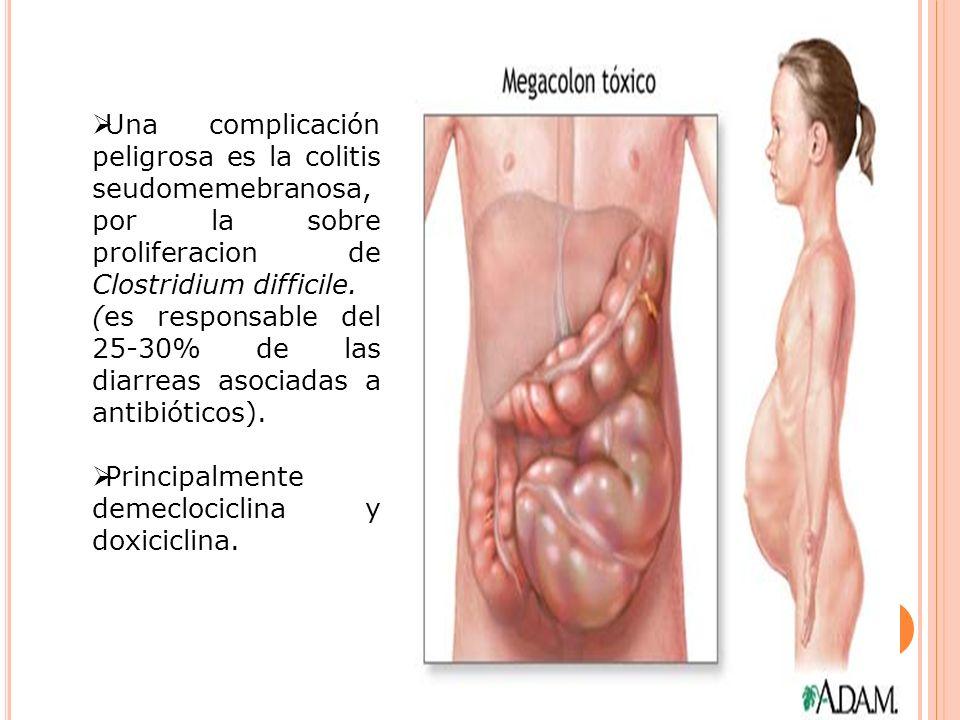 Una complicación peligrosa es la colitis seudomemebranosa, por la sobre proliferacion de Clostridium difficile. (es responsable del 25-30% de las diar