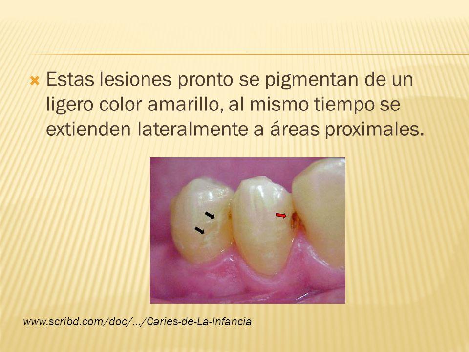 Estas lesiones pronto se pigmentan de un ligero color amarillo, al mismo tiempo se extienden lateralmente a áreas proximales. www.scribd.com/doc/.../C