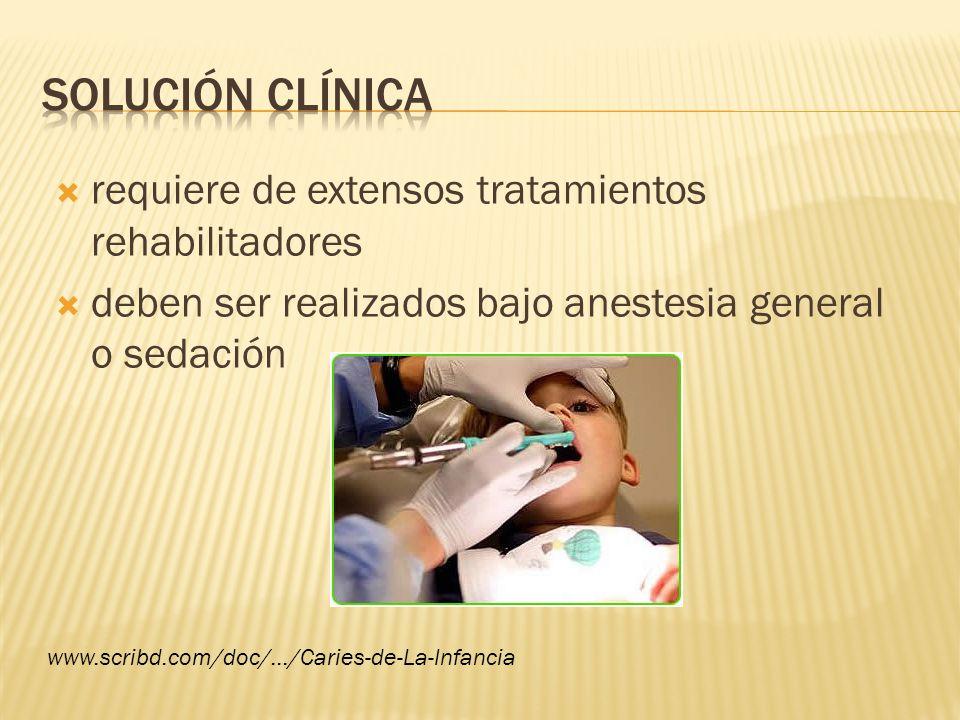 requiere de extensos tratamientos rehabilitadores deben ser realizados bajo anestesia general o sedación www.scribd.com/doc/.../Caries-de-La-Infancia