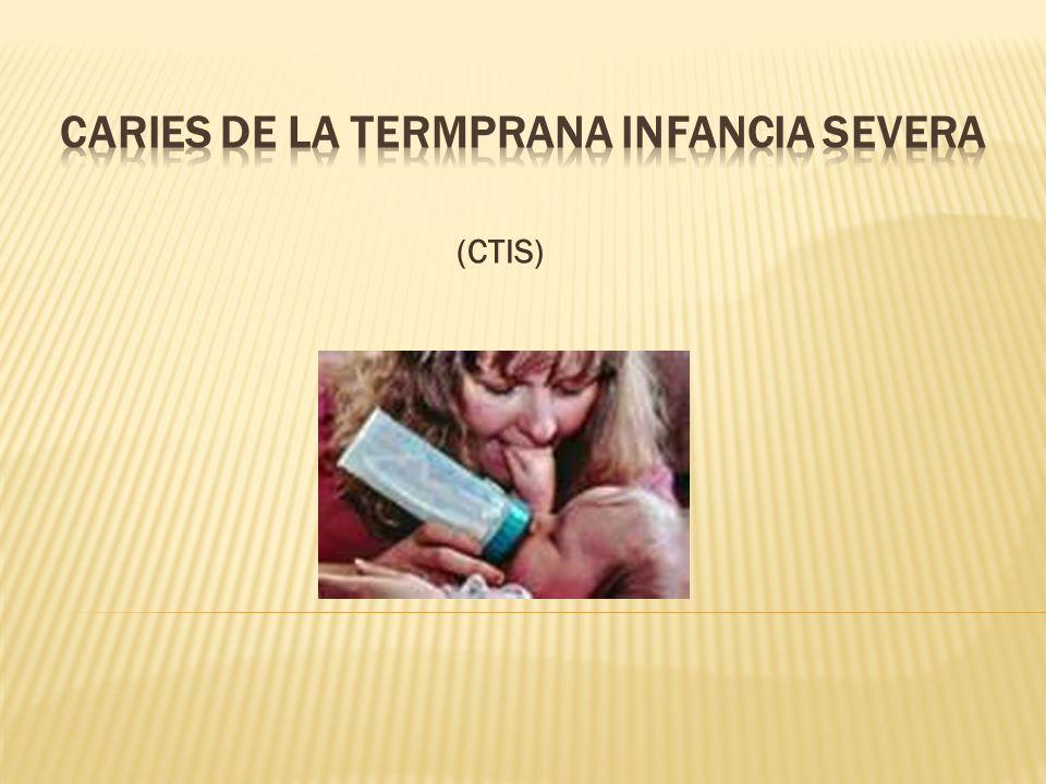 (CTIS)