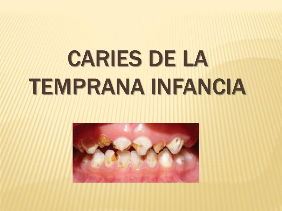 Caries dental en dientes permanentes: se inicia en el esmalte (lento), luego de penetrar la dentina la caries se extiende rápidamente y avanza hacia la pulpa causando dolor.