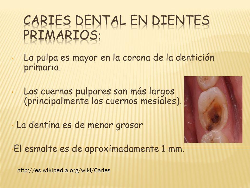 La pulpa es mayor en la corona de la dentición primaria. Los cuernos pulpares son más largos (principalmente los cuernos mesiales). La dentina es de m