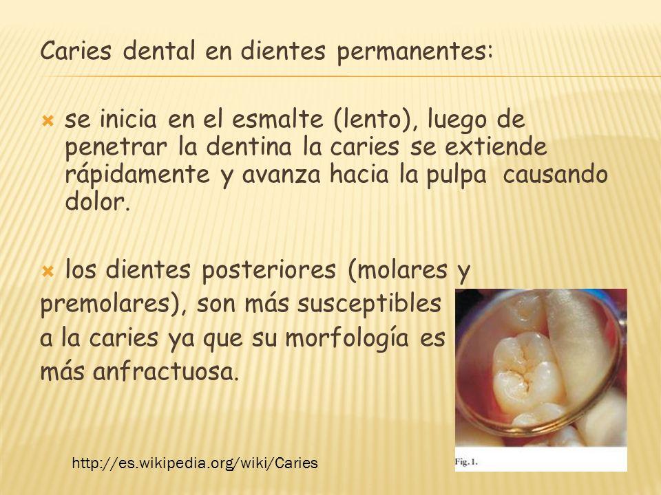Caries dental en dientes permanentes: se inicia en el esmalte (lento), luego de penetrar la dentina la caries se extiende rápidamente y avanza hacia l