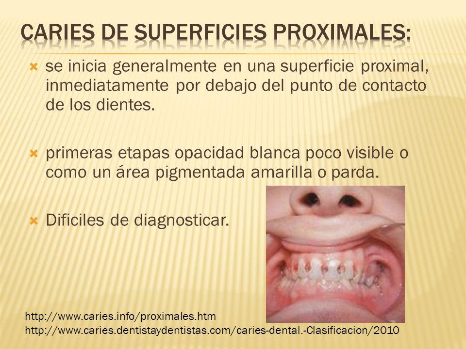 se inicia generalmente en una superficie proximal, inmediatamente por debajo del punto de contacto de los dientes. primeras etapas opacidad blanca poc