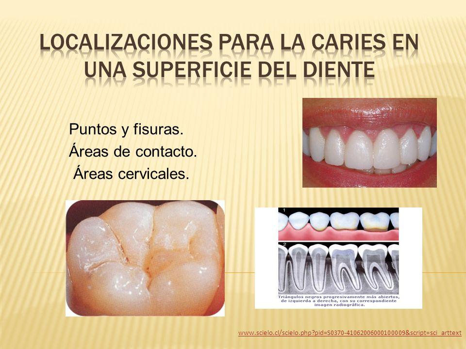 Puntos y fisuras. Áreas de contacto. Áreas cervicales. www.scielo.cl/scielo.php?pid=S0370-41062006000100009&script=sci_arttext
