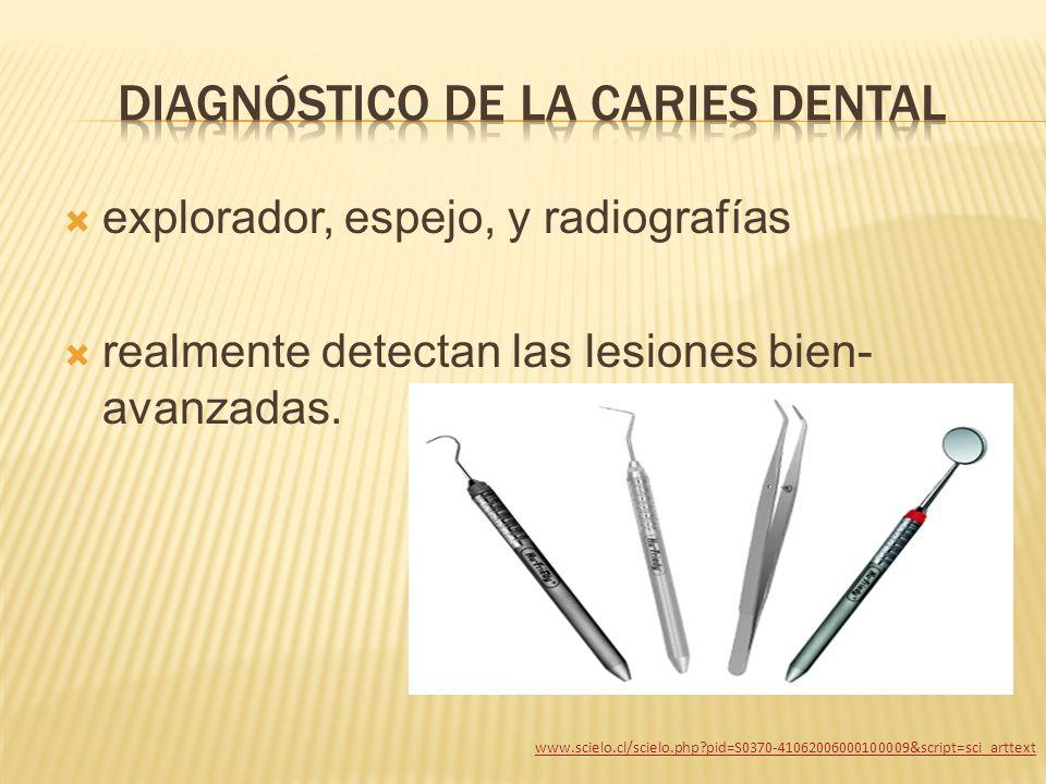 explorador, espejo, y radiografías realmente detectan las lesiones bien- avanzadas. www.scielo.cl/scielo.php?pid=S0370-41062006000100009&script=sci_ar