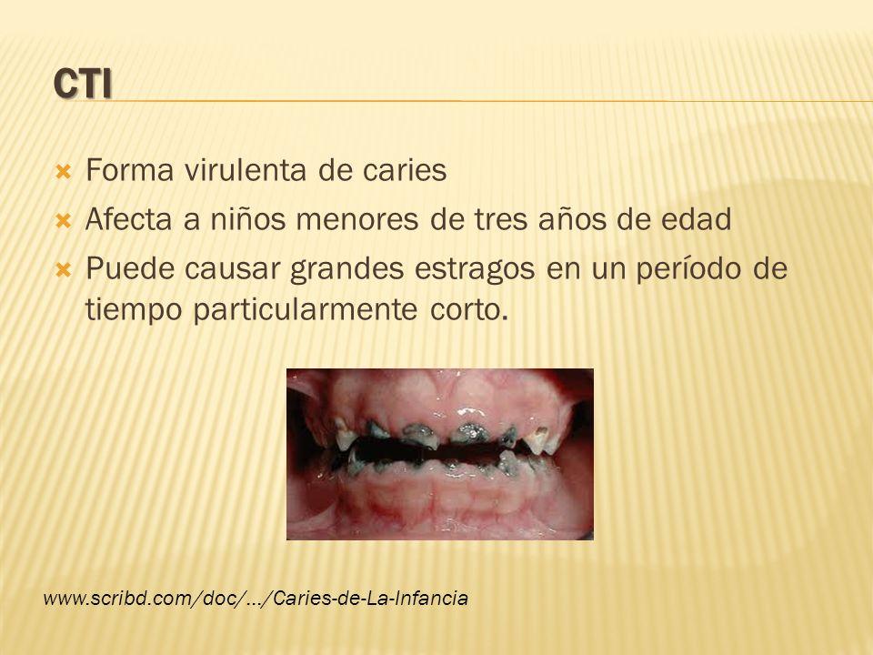 Afecta a dientes antero-superiores.