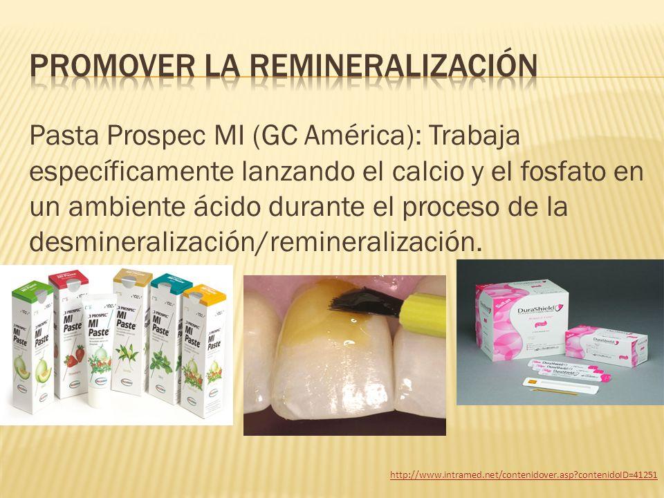 Pasta Prospec MI (GC América): Trabaja específicamente lanzando el calcio y el fosfato en un ambiente ácido durante el proceso de la desmineralización
