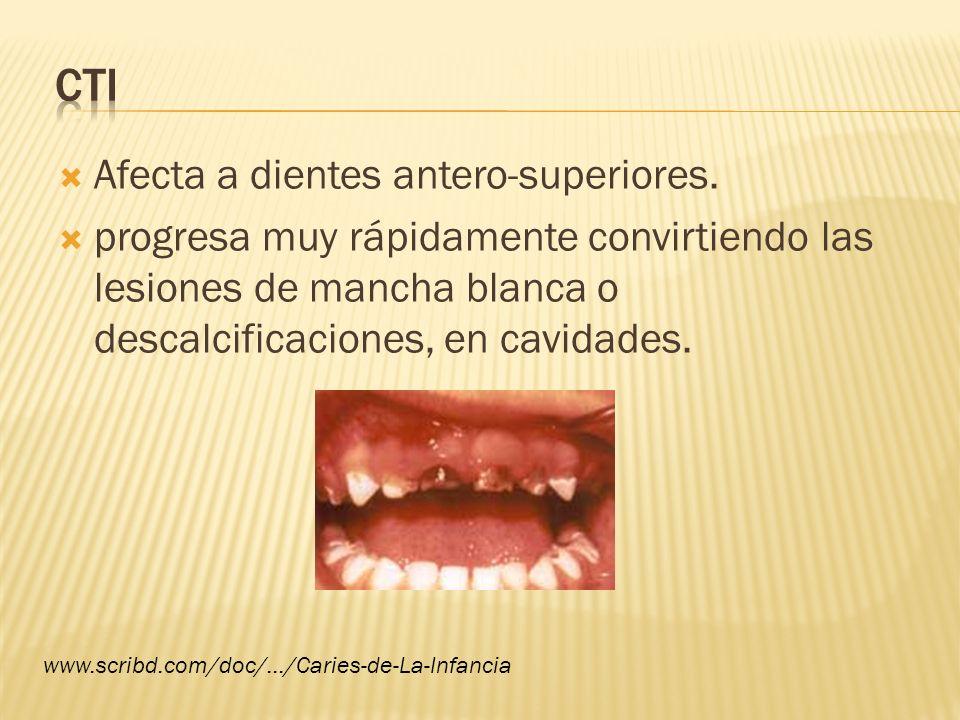 Afecta a dientes antero-superiores. progresa muy rápidamente convirtiendo las lesiones de mancha blanca o descalcificaciones, en cavidades. www.scribd