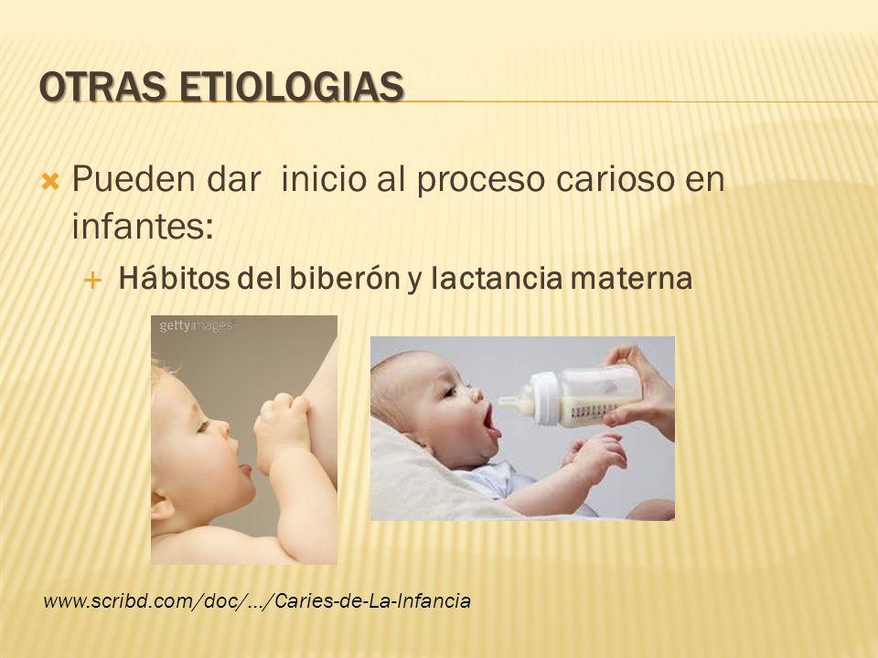 OTRAS ETIOLOGIAS Pueden dar inicio al proceso carioso en infantes: Hábitos del biberón y lactancia materna www.scribd.com/doc/.../Caries-de-La-Infanci