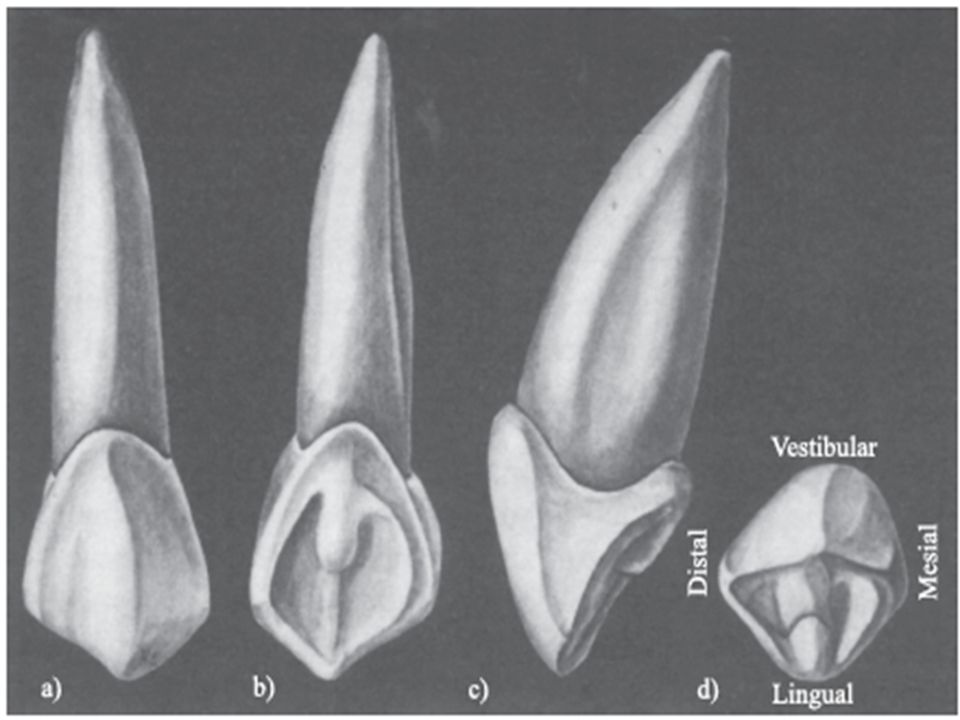 Presenta dos fosas: una mesiopalatina y otra distopalatina.