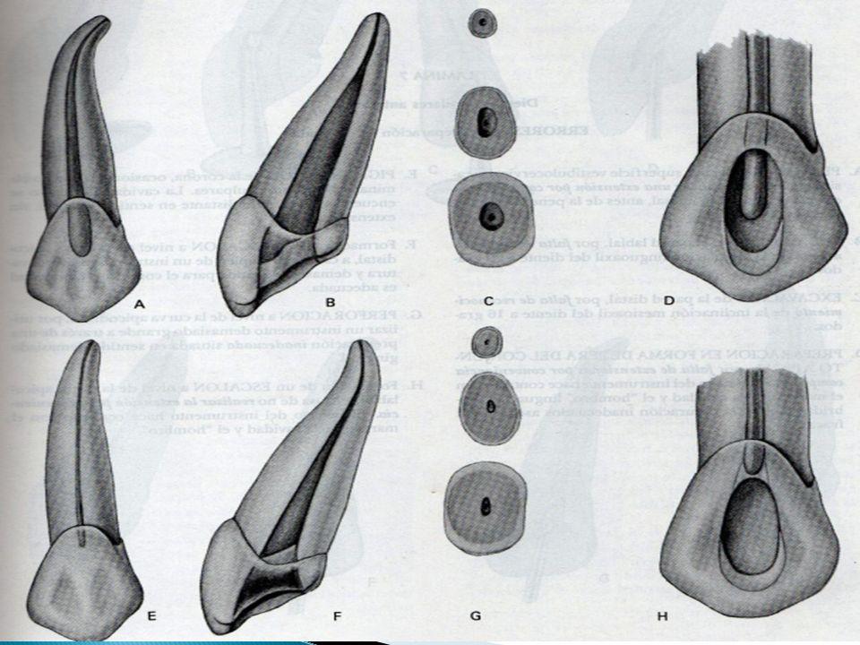 La cámara pulpar es amplia con mayor diámetro en el sentido labiopalatino, el techo presenta una concavidad bastante acentuada que corresponde ala cúspide perforante de este diente.