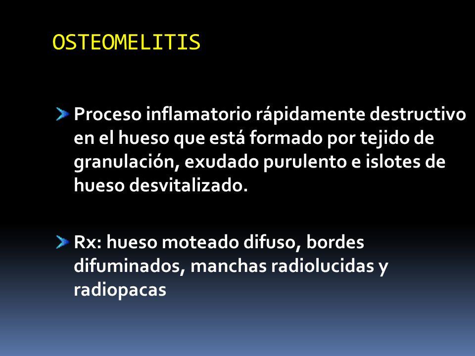 OSTEOMELITIS Proceso inflamatorio rápidamente destructivo en el hueso que está formado por tejido de granulación, exudado purulento e islotes de hueso
