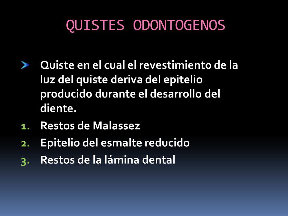 QUISTES ODONTOGENOS Quiste en el cual el revestimiento de la luz del quiste deriva del epitelio producido durante el desarrollo del diente. 1. Restos