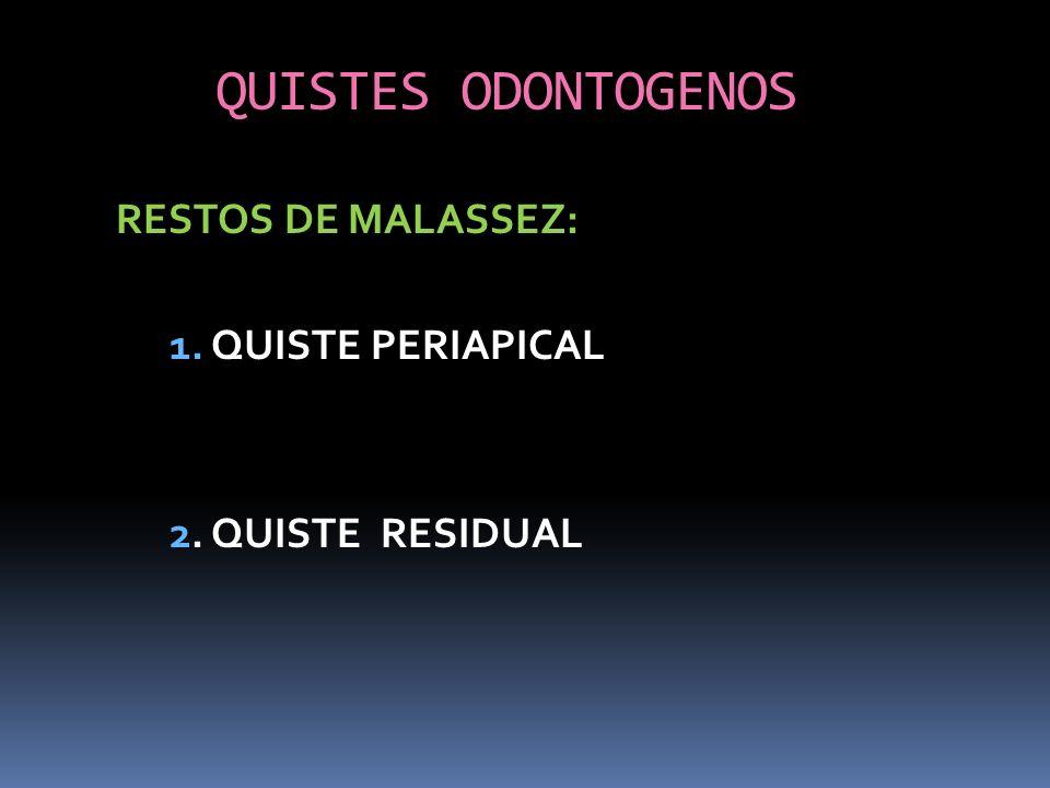 QUISTES ODONTOGENOS RESTOS DE MALASSEZ: 1. QUISTE PERIAPICAL 2. QUISTE RESIDUAL