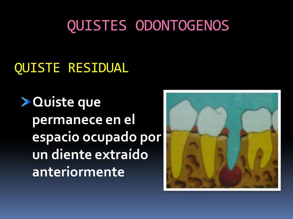 QUISTES ODONTOGENOS Quiste que permanece en el espacio ocupado por un diente extraído anteriormente QUISTE RESIDUAL