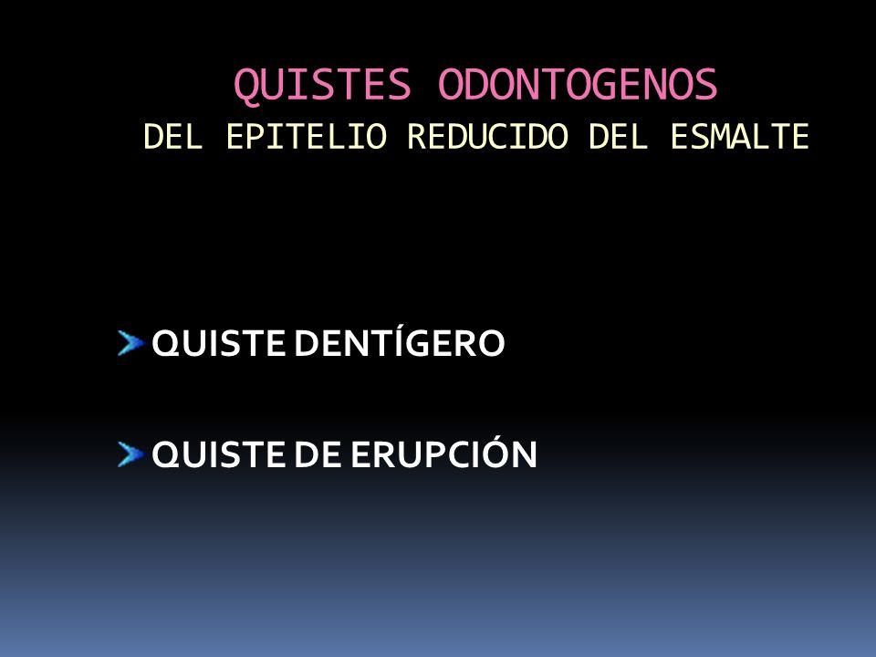QUISTES ODONTOGENOS DEL EPITELIO REDUCIDO DEL ESMALTE QUISTE DENTÍGERO QUISTE DE ERUPCIÓN