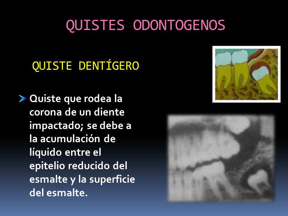 QUISTES ODONTOGENOS Quiste que rodea la corona de un diente impactado; se debe a la acumulación de líquido entre el epitelio reducido del esmalte y la