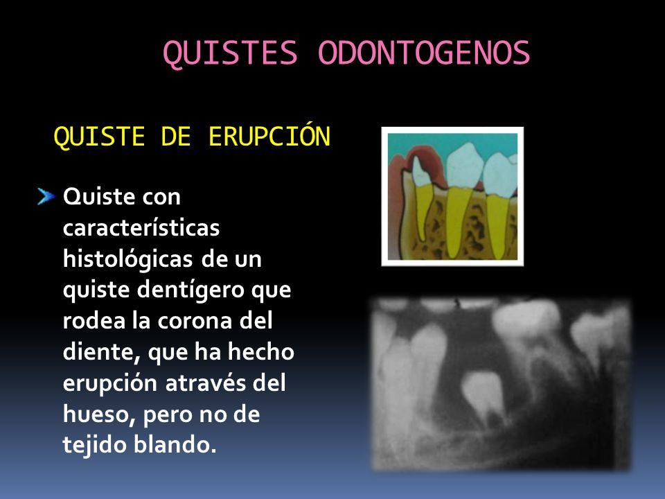 QUISTES ODONTOGENOS Quiste con características histológicas de un quiste dentígero que rodea la corona del diente, que ha hecho erupción através del h