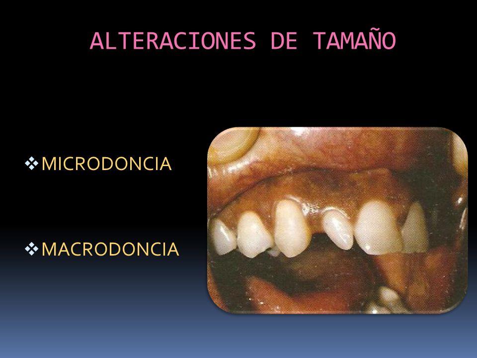 ALTERACIONES DE TAMAÑO MICRODONCIA MACRODONCIA