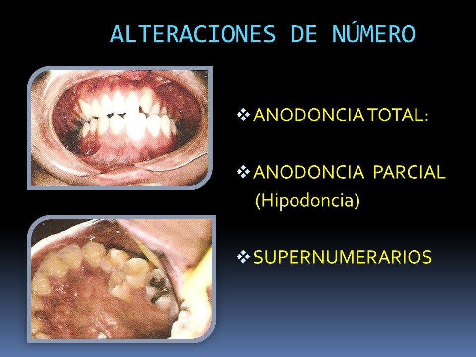 ALTERACIONES DE NÚMERO ANODONCIA TOTAL: ANODONCIA PARCIAL (Hipodoncia) SUPERNUMERARIOS