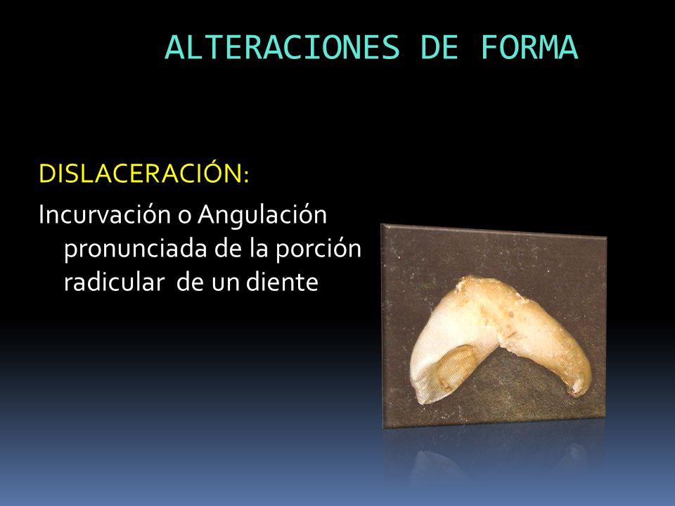 ALTERACIONES DE FORMA DISLACERACIÓN: Incurvación o Angulación pronunciada de la porción radicular de un diente