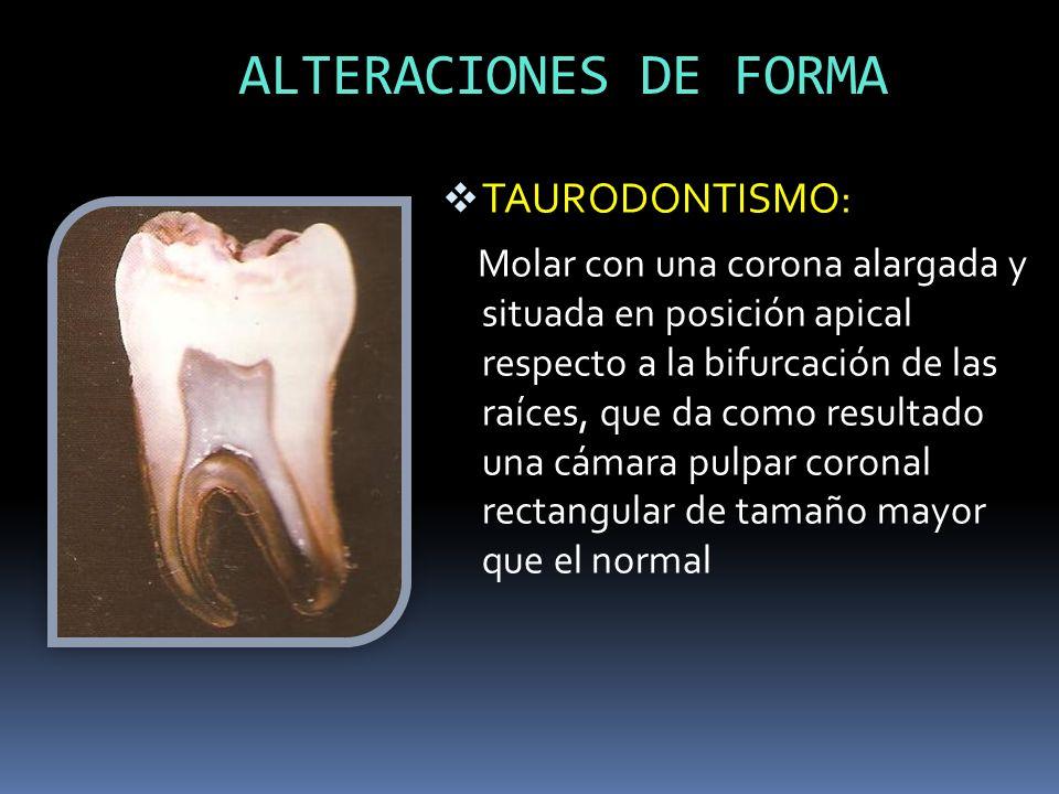 ALTERACIONES DE FORMA TAURODONTISMO: Molar con una corona alargada y situada en posición apical respecto a la bifurcación de las raíces, que da como r