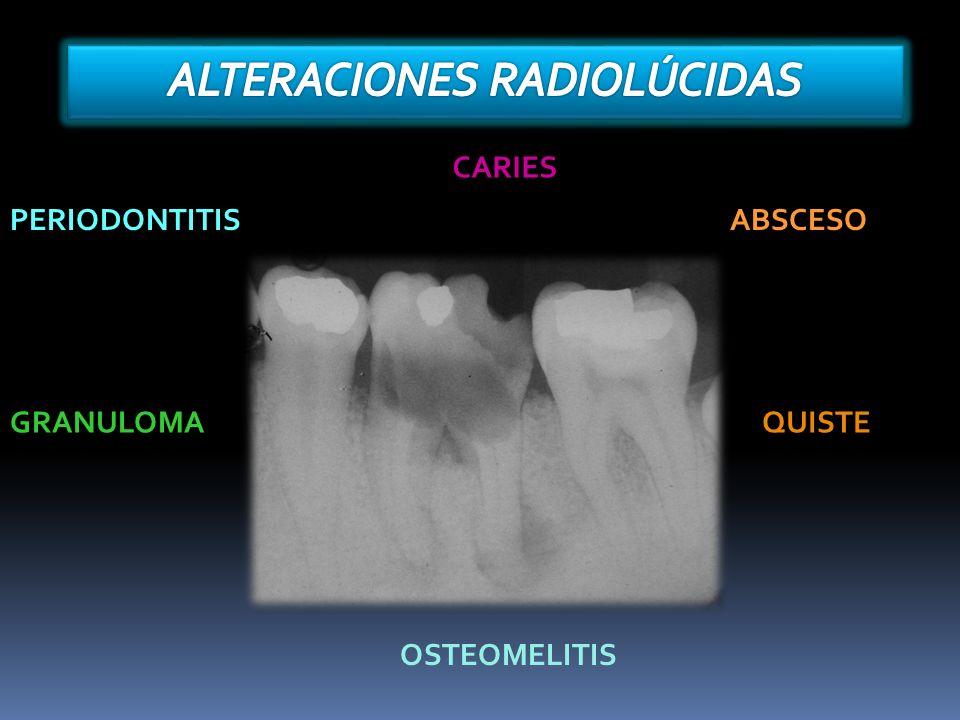 CARIES PERIODONTITISABSCESO GRANULOMAQUISTE OSTEOMELITIS