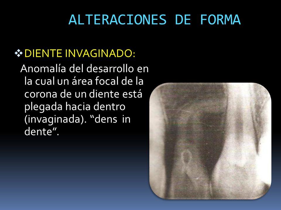 ALTERACIONES DE FORMA DIENTE INVAGINADO: Anomalía del desarrollo en la cual un área focal de la corona de un diente está plegada hacia dentro (invagin