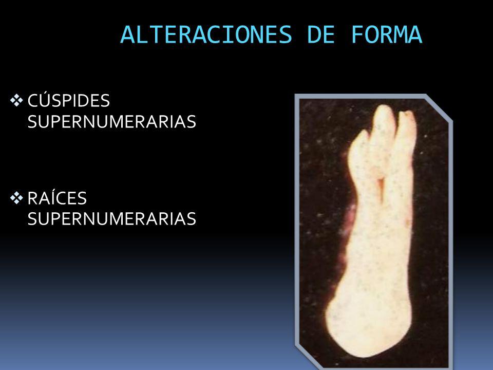 ALTERACIONES DE FORMA CÚSPIDES SUPERNUMERARIAS RAÍCES SUPERNUMERARIAS