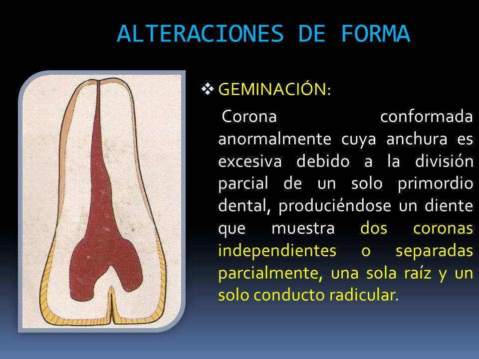 ALTERACIONES DE FORMA GEMINACIÓN: Corona conformada anormalmente cuya anchura es excesiva debido a la división parcial de un solo primordio dental, pr