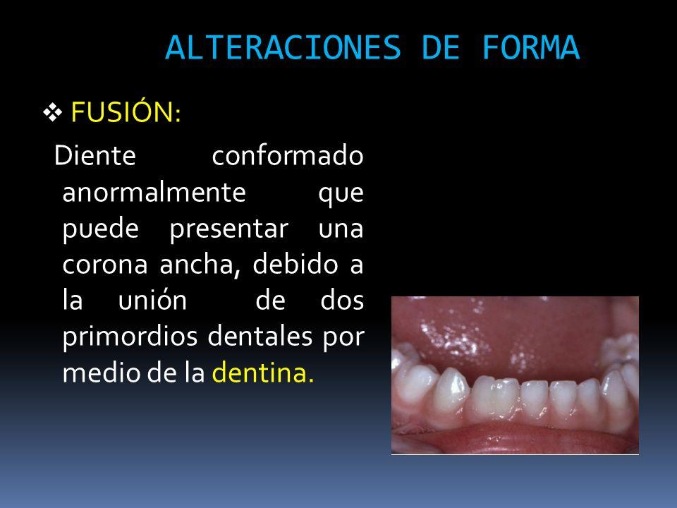 ALTERACIONES DE FORMA FUSIÓN: Diente conformado anormalmente que puede presentar una corona ancha, debido a la unión de dos primordios dentales por me